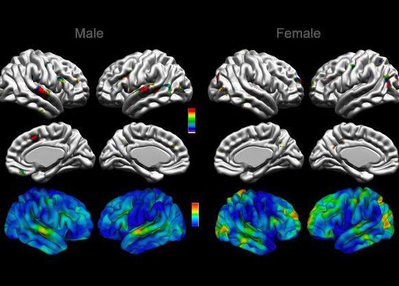 Vers une meilleure compréhension de l'anatomie cérébrale dans le trouble du spectre de l'autisme